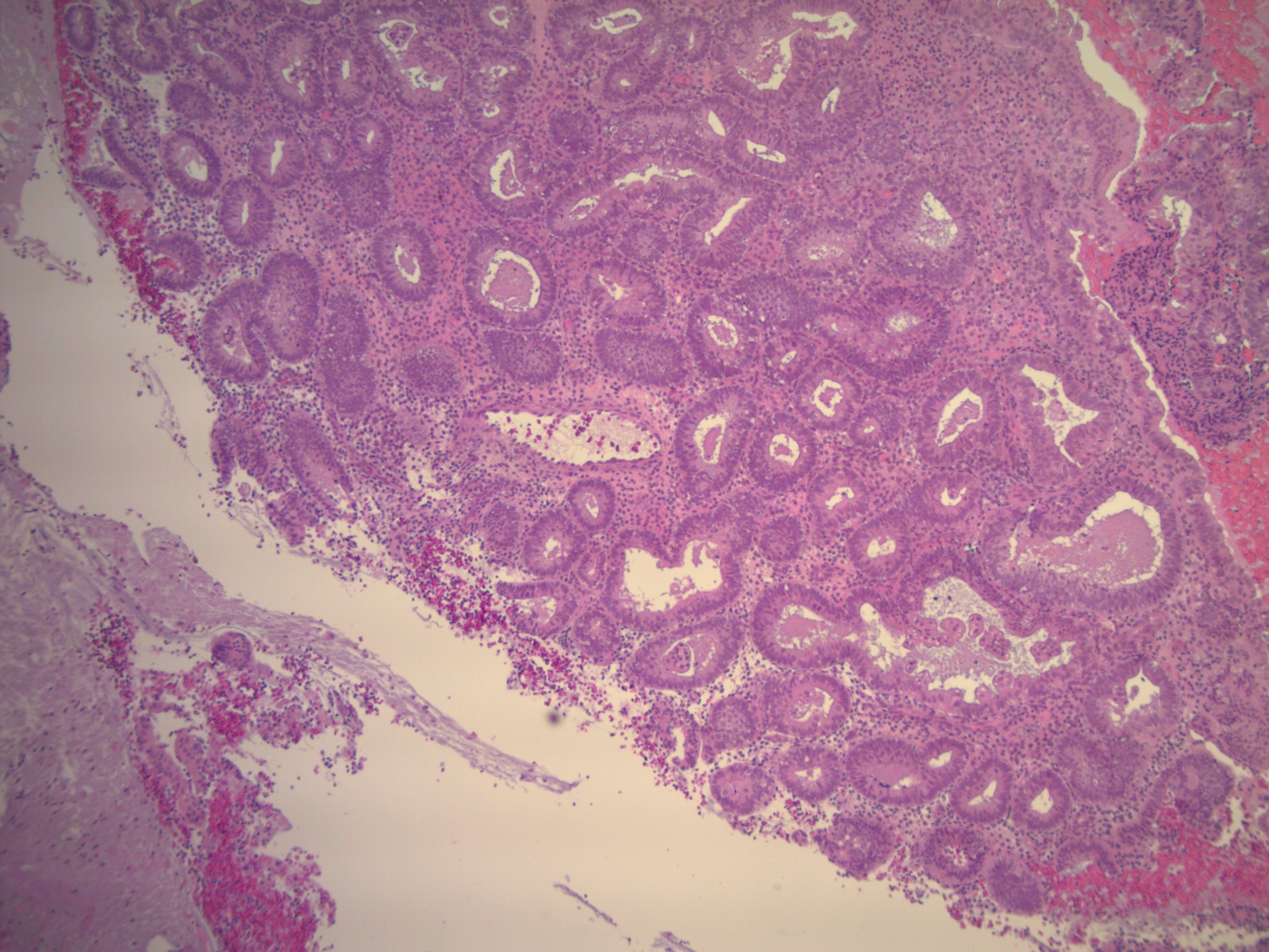PAEC with complex hyperplasia and crowded glands with proliferative epithelium