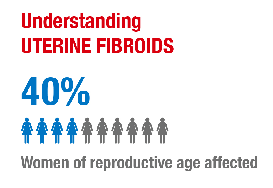 Prevalence of uterine fibroids in Europe